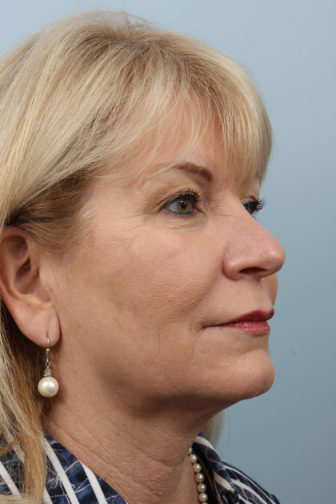 Closeup of blonde female wearing a blue striped shirt, showing sagginess of skin in her midface and neck before weekend neck lift surgery