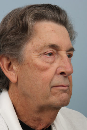 72 year old male wearing white shirt before weekend neck lift procedure showing under eye bags and loose jowls
