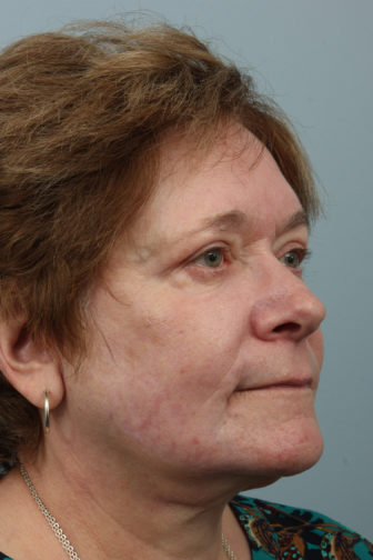 Closeup of elderly female oblique view showing refreshed under eyes and tightened neck skin after weekend neck lift surgery