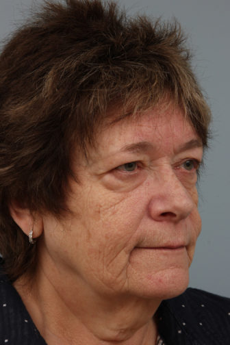 Closeup of elderly female oblique view showing saggy under eye bags and heavy neck skin before weekend neck lift surgery