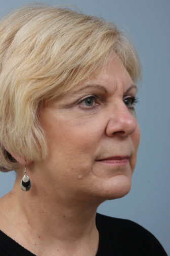 Closeup of blonde female showing firmer skin on her under eyes, neck, and jawline after a weekend facelift procedure