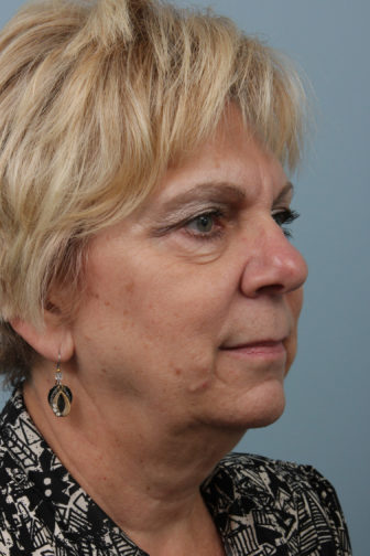 Closeup of a blonde female showing sagging skin and visible wrinkles on her face and neck before a weekend facelift