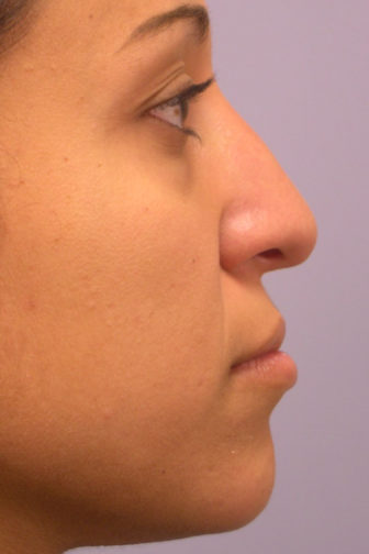 Closeup of a female with black hair showing the straight, symmetrical results of an ethnic rhinoplasty plastic surgery