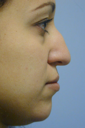 Closeup of a female showing a deformed angle and curved tip of the nose before an ethnic rhinoplasty plastic surgery