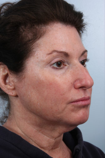 Closeup of a female wearing a black shirt showing flabby cheeks and neck skin before a deep plane facelift