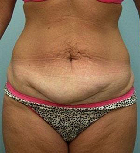 Closeup of female wearing pink and black showing excess fat along her lower body before a tummy tuck surgery