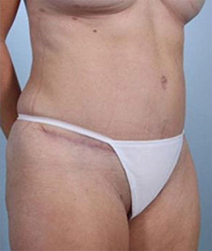 Closeup of a 40 year old female wearing white underwear showing tighter abdominal muscles after tummy tuck surgery