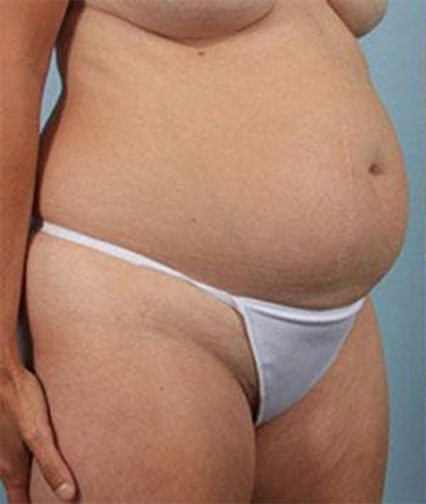 Closeup of a 40 year old female wearing white underwear showing a swollen abdomen before a tummy tuck surgery