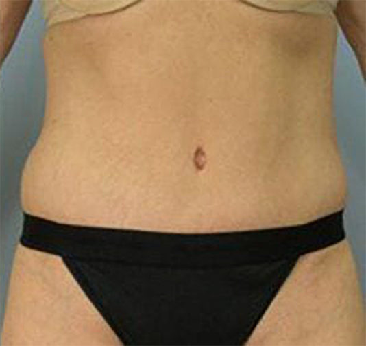 Closeup of a middle aged female wearing a tan bra after a tummy tuck surgery showing a significant refreshed look