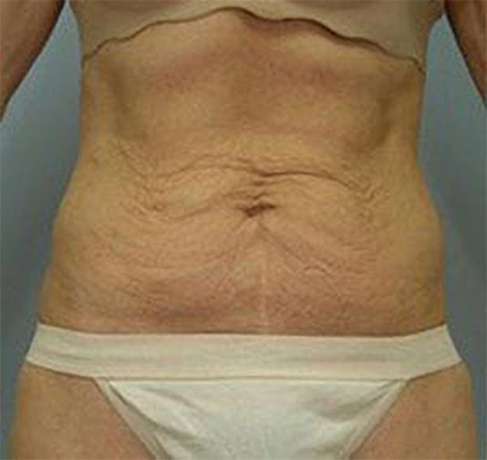 Closeup of a middle aged female wearing tan bra before tummy tuck surgery showing defined wrinkles in her stomach