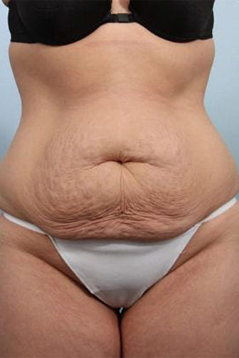 Closeup of a female before tummy tuck surgery wearing white underwear showing excess abdominal skin