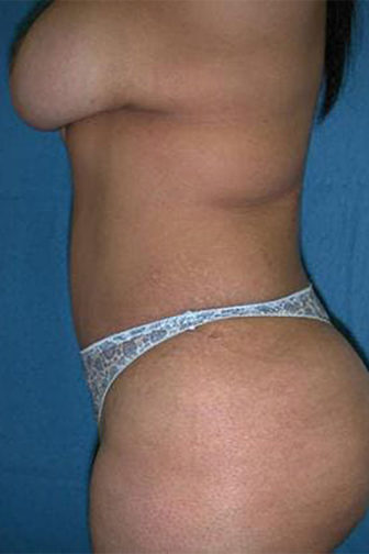 Closeup of a female's side profile showing slimmer appearance after a tummy tuck surgery