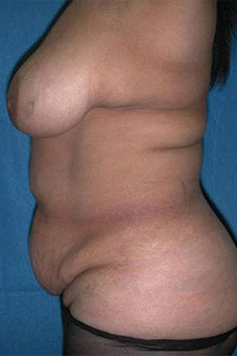 Closeup of a female's side profile showing wrinkled skin on her stomach before undergoing tummy tuck surgery