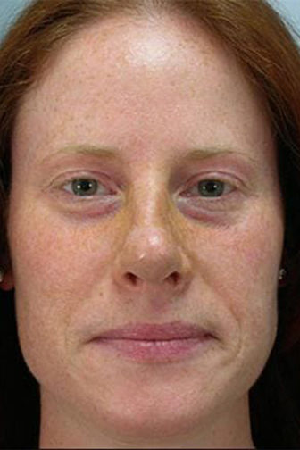 Closeup of a female with brown hair showing a thinner, concave look of her nose after an endonasal rhinoplasty surgery