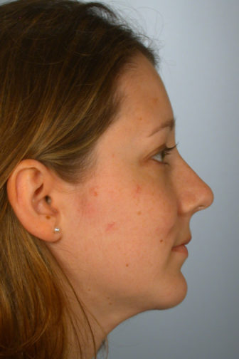 Closeup of a brunette female showing a smoother shape of her nose after undergoing a rhinoplasty plastic surgery