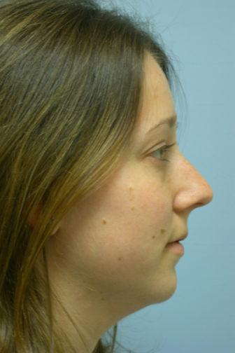 Closeup of a female with brown hair showing curved nasal tip before undergoing a rhinoplasty plastic surgery