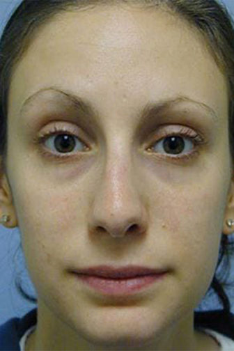 Frontal view of a female showing a smoother and slimmer nose after rhinoplasty surgery