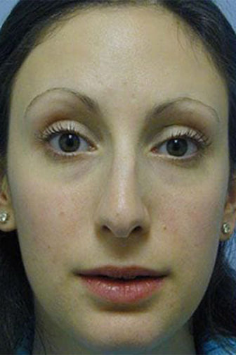 Frontal view of a female showing a crooked nose and a hump before rhinoplasty surgery