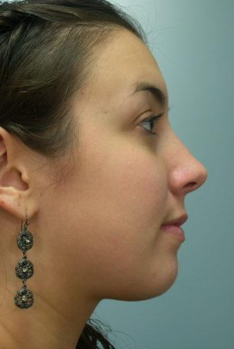 Closeup of a female with brown hair wearing black earrings showing straight, symmetrical feminine nose after rhinoplasty