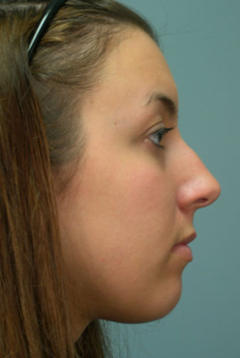 Closeup of a brunette showing masculine nose and distorted shape of her nose before rhinoplasty plastic surgery