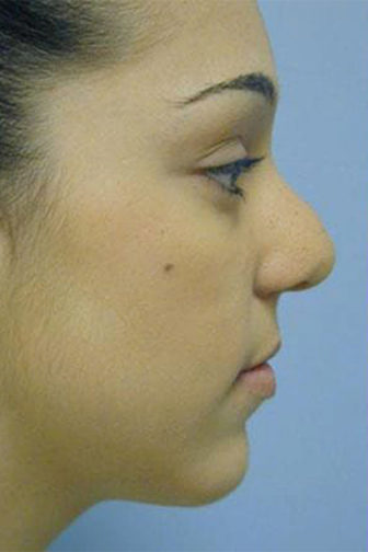 SIde profile of a female showing a rounded dorsum before a revision rhinoplasty procedure