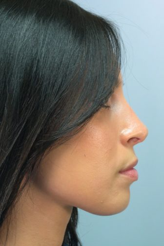 Close up of a 24 year old female with black long hair showing a straighter angle of her nose after rhinoplasty surgery
