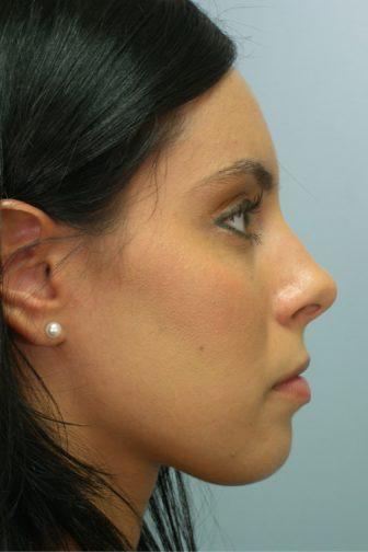 Close up of a female with black hair wearing pearl stud earrings showing contorted nose before rhinoplasty surgery