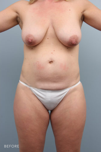 Close-up of a female's breasts and abdomen showing excess tummy fat and sagging breasts before mommy makeover procedure.