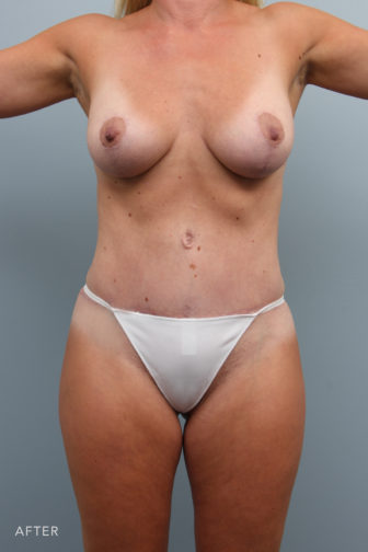 Close-up of a female's breasts and abdomen showing flat tummy and lifted breasts after a mommy makeover procedure.
