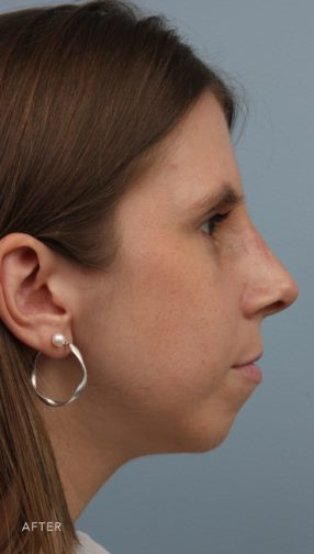 Side profile of a brunette woman after she underwent a rhinoplasty procedure