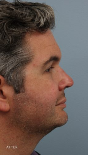 This is the side profile of a man with dark hair after undergoing a rhinoplasty procedure.