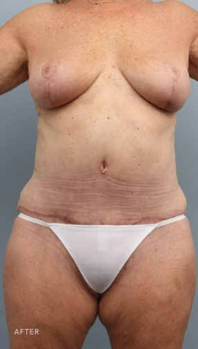 This is the front view of a woman after undergoing a mommy makeover procedure which included a breast reduction and abdominoplasty.