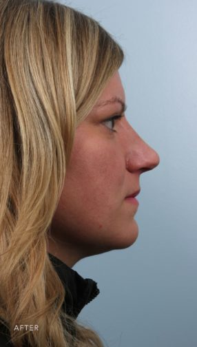 This is the side profile of woman with blonde hair after undergoing a rhinoplasty.