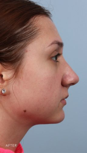 This is the side profile view of a brunette girl after undergoing an endonasal rhinoplasty procedure. Her nose is now much smoother.