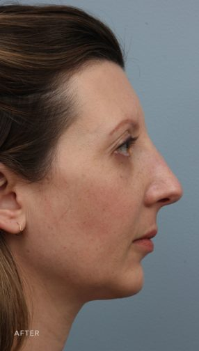 This is the side profile of a brunette woman after undergoing the rhinoplasty and chin augmentation procedures.
