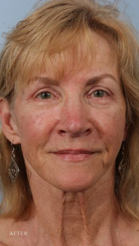 This is the front view of a woman after her blepharoplasty and fat grafting procedure.