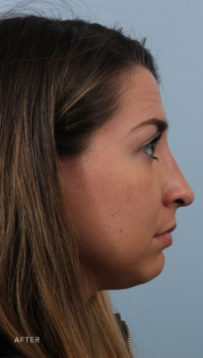 This is the side profile of a brunette woman after undergoing a rhinoplasty procedure.