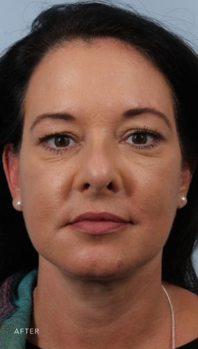 Front view of a brunette woman after undergoing a Deep Plane Facelift surgery. She is wearing a blue shirt and pearl earrings.