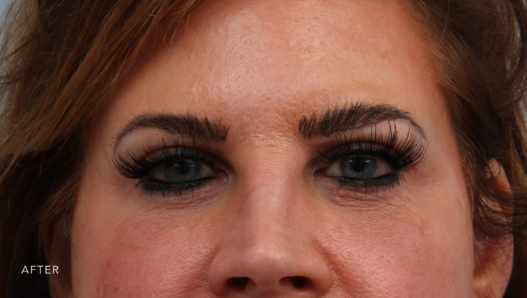 This is the front view of a woman after undergoing an upper and lower lid blepharoplasty procedure. Her eyes are now much larger and more open.