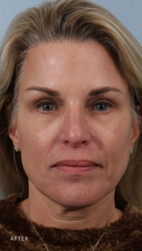 This is the front view of a blonde woman after undergoing an upper and lower lid blepharoplasty and fat grafting.