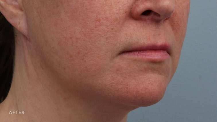 This is the oblique view of a woman after undergoing a weekend facelift. Her skin is much smoother and looks more youthful.