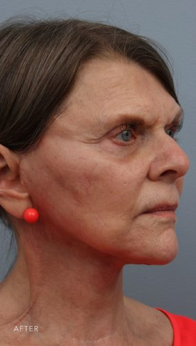 This is the oblique view of a brunette woman after undergoing a lower face and neck lift surgery. She is wearing a pink shirt and earrings.