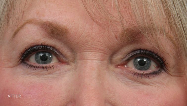 This is the front view of a blonde woman after undergoing a blepharoplasty procedure.