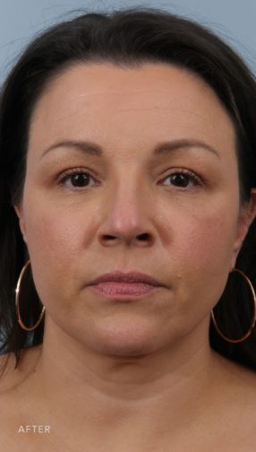 This is the front view of a patient after undergoing a weekend facelift.