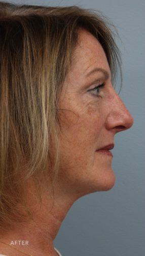 This is the side profile of a woman after undergoing a rhinoplasty surgery.