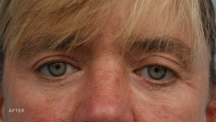 This is the front view of a woman after undergoing a blepharoplasty and ptosis repair.