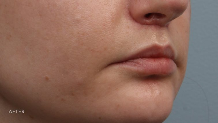 This is the oblique view of a woman's lips after she got a lip lift. Her upper lift appears much fuller.