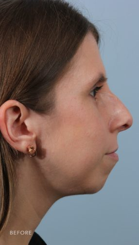 Side profile of a brunette woman before undergoing a rhinoplasty procedure.