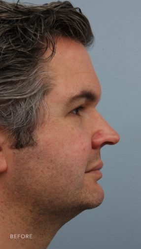 This is the side profile of a man with dark hair before undergoing a rhinoplasty procedure.