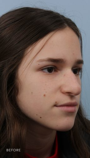 This is the oblique view of a young woman before undergoing a rhinoplasty procedure. She has a drooping nose and there is a bump on her nose as well.